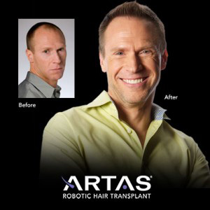 before and after robotic hair transplant